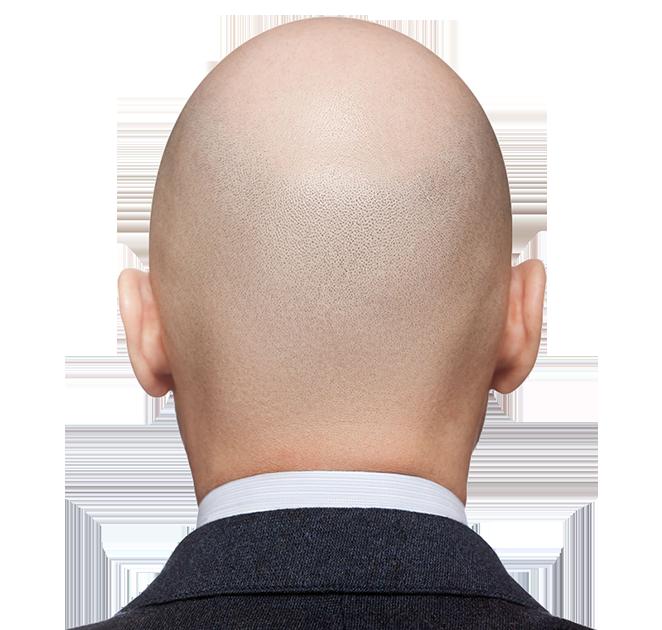 le cheveu de l'homme