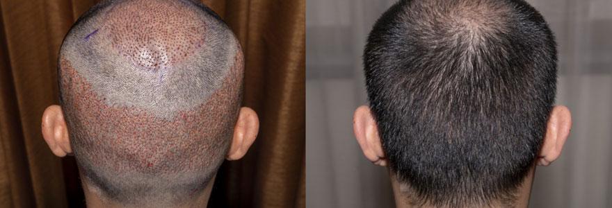 Greffe de cheveux